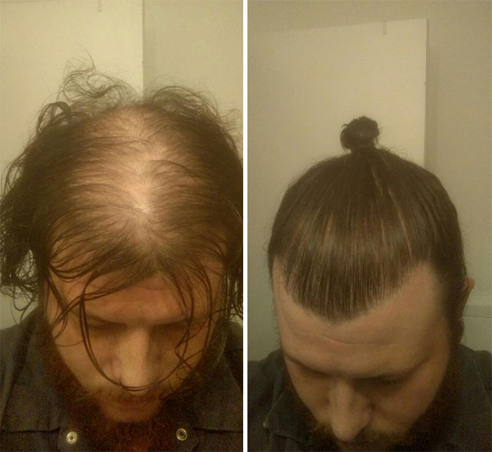 Men Are Hiding Baldness With Man Buns But It S Riskier Than You