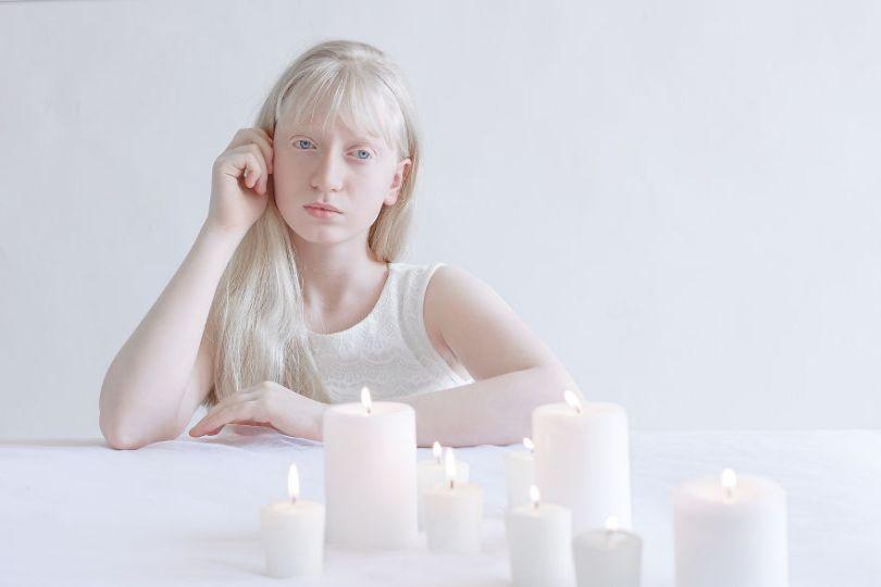 IMG 0036 S Neta 59529ef6bc4ac  880 - A beleza dos albinos