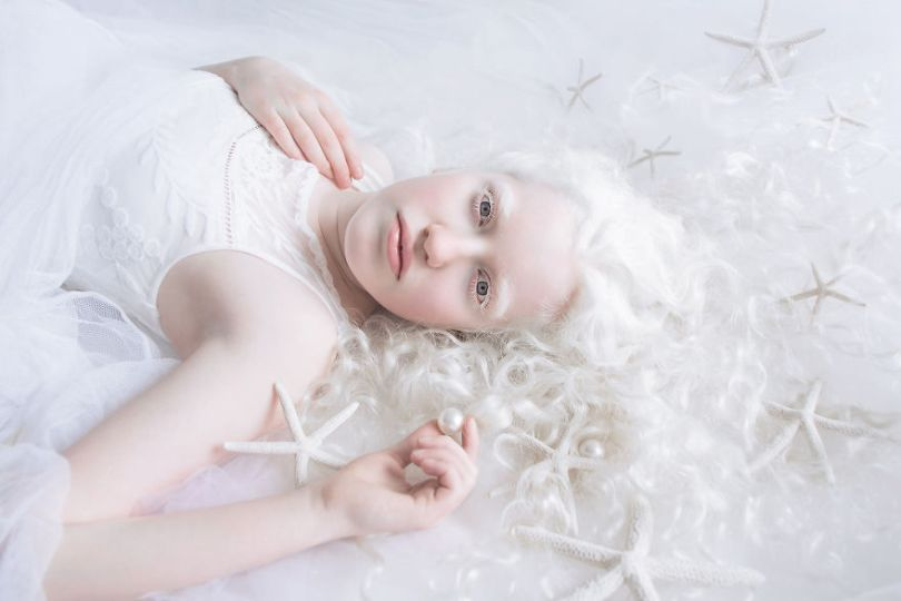 IMG 0065 s Michal 59529efa98b35  880 - A beleza dos albinos