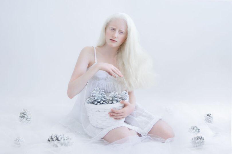 IMG 0446 s noa 59529f0b58c45  880 - A beleza dos albinos