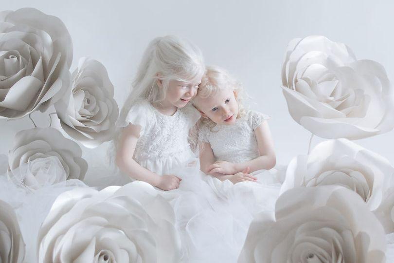 IMG 0622 s Tair Gili 59529f1c4400e  880 - A beleza dos albinos