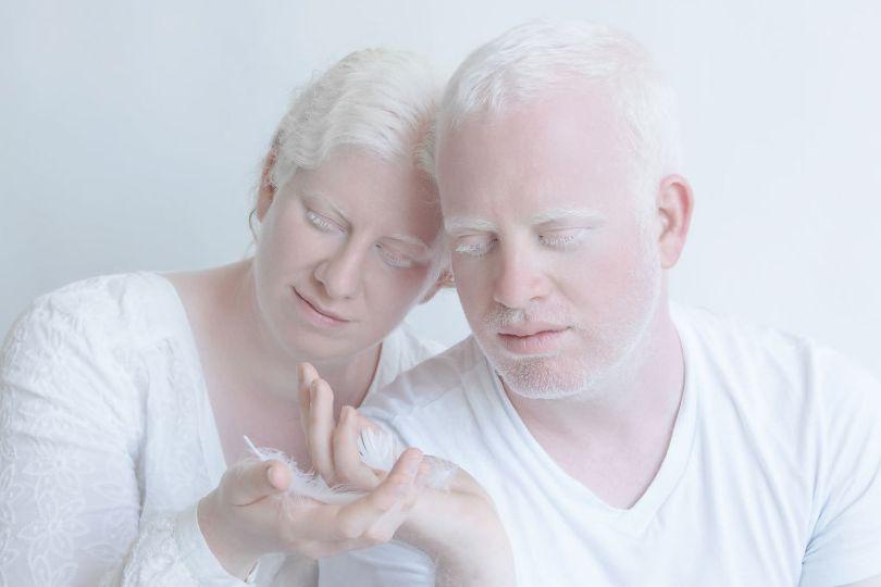 IMG 1076 YaronZlil 59529f28c84a5  880 - A beleza dos albinos