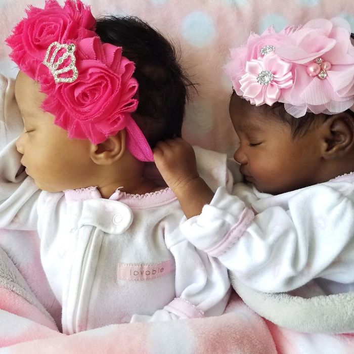 Twins with different skin colors are enchanting the internet and you will fall in love as well 5a154372e1e8f  700 - Meninas gêmeas que conquistaram a Internet