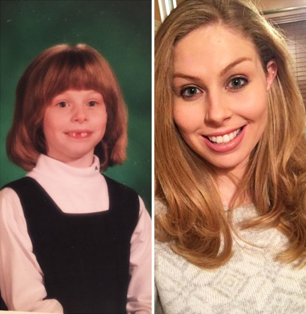 """68-5a816fafb65e1__700 People Who Used To Be """"Ugly Ducklings"""" Share Their Transformations, And We Can Barely Recognize Them (New Pics) Design Random"""