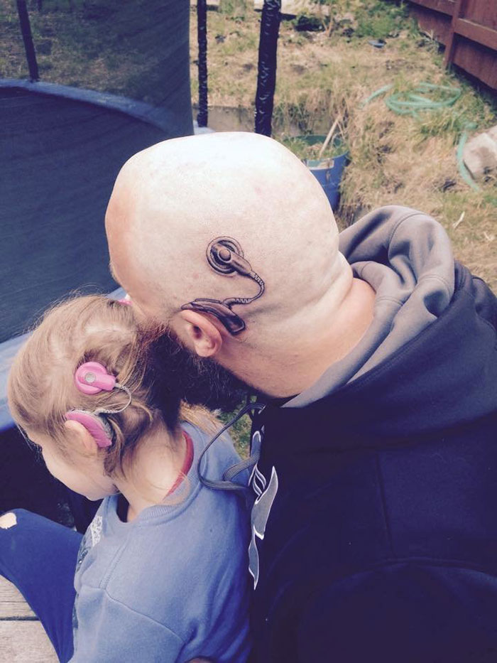 Dad Got Cochlear Implant Tattoo To Match His Daughter's Real One