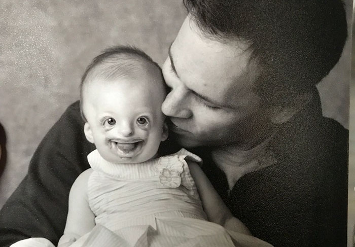 disabled-girl-sophia-abortion-promotion-twitter-natalie-weaver-north-carolina-2-5ac329ca71d3c__700 This 9-Year-Old Girl's Face Was Used To Promote Abortion, So Her Mom Got Brilliant Revenge Design Random