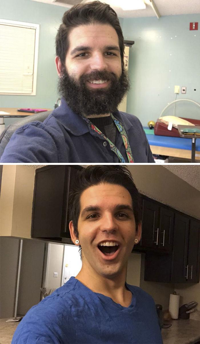 Trabajo con pacientes en rehabilitación. Hace 2 meses hice una apuesta con un paciente que me afeitaría si pudiéramos lograr que alcance un objetivo determinado. Hoy, lo hizo. Mañana él me bebe bebé