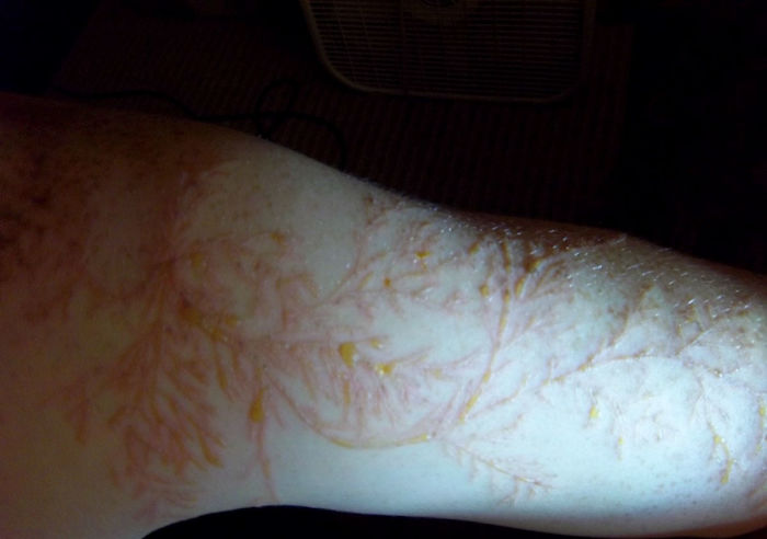 Scars-After-Surviving-Lightning-Strike-Lichtenberg-Figures-Photos-10-5b6d30e2d6d4b__700 19 People Who Survived Getting Struck By Lightning Show What It Does To Your Skin Design Random
