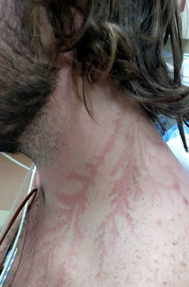 Scars-After-Surviving-Lightning-Strike-Lichtenberg-Figures-Photos-12-5b6d30e63a74b__700 19 People Who Survived Getting Struck By Lightning Show What It Does To Your Skin Design Random