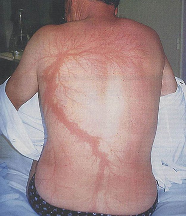 Scars-After-Surviving-Lightning-Strike-Lichtenberg-Figures-Photos-17-5b6d30af76710__700 19 People Who Survived Getting Struck By Lightning Show What It Does To Your Skin Design Random