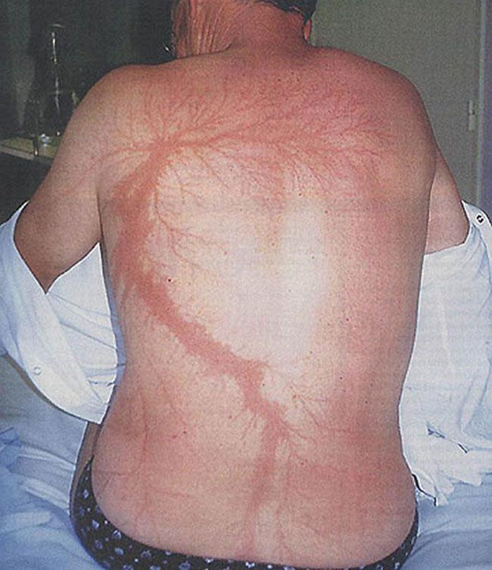Scars-After-Surviving-Lightning-Strike-Lichtenberg-Figures-Photos-17-5b6d30af76710__700 19 People Who Survived Getting Struck By Lightning Show What It Does To Your Skin Design Random