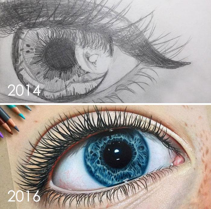 Mejora de los ojos en 2 años, 13 a 15 años
