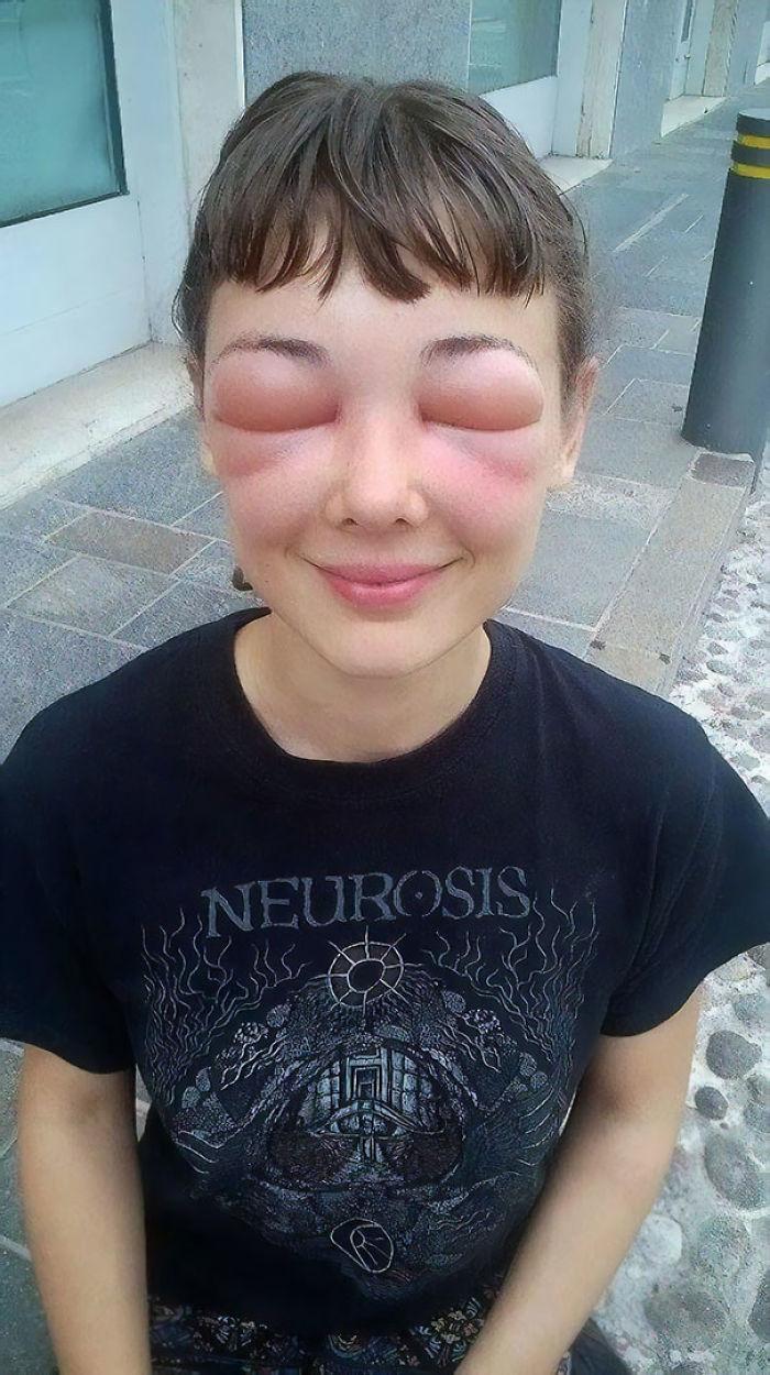 El día que aprendí era alérgico a las abejas mientras trabajaba como A Apicultor en Italia