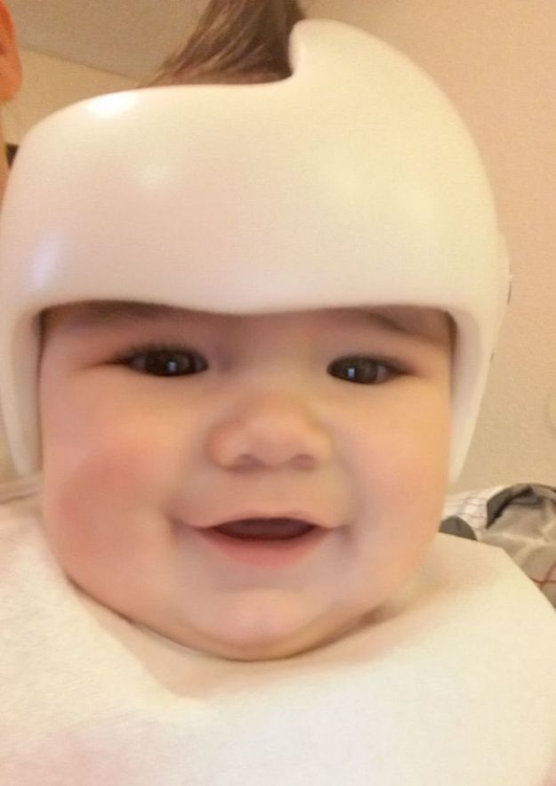 children-son-helmet-support-celebrity-chrissy-teigen-5c07cad1ef444__700 Chrissy Teigen Has Shared A Photo Of Her Son With A Head-Shaping Helmet, People From All Around The World Respond Design Random
