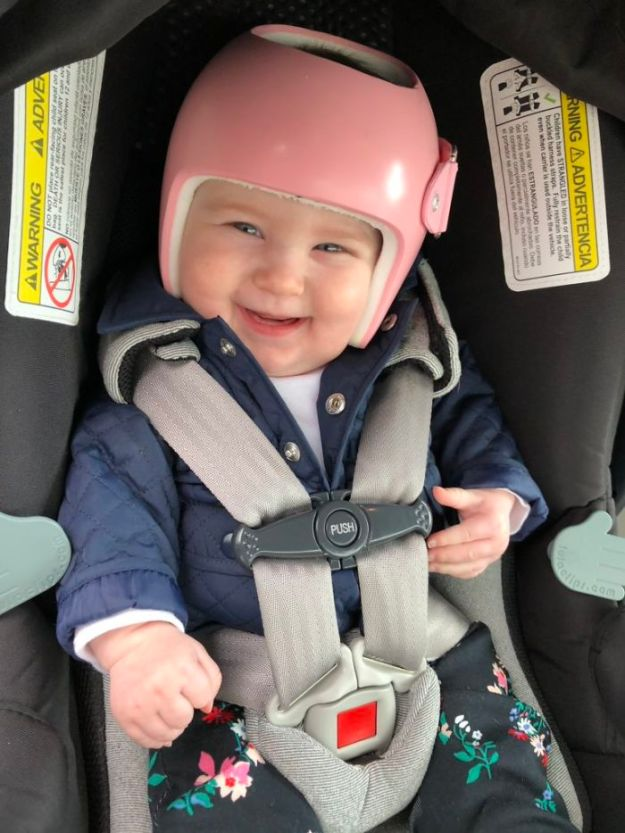 children-son-helmet-support-celebrity-chrissy-teigen-5c07cdd599504__700 Chrissy Teigen Has Shared A Photo Of Her Son With A Head-Shaping Helmet, People From All Around The World Respond Design Random