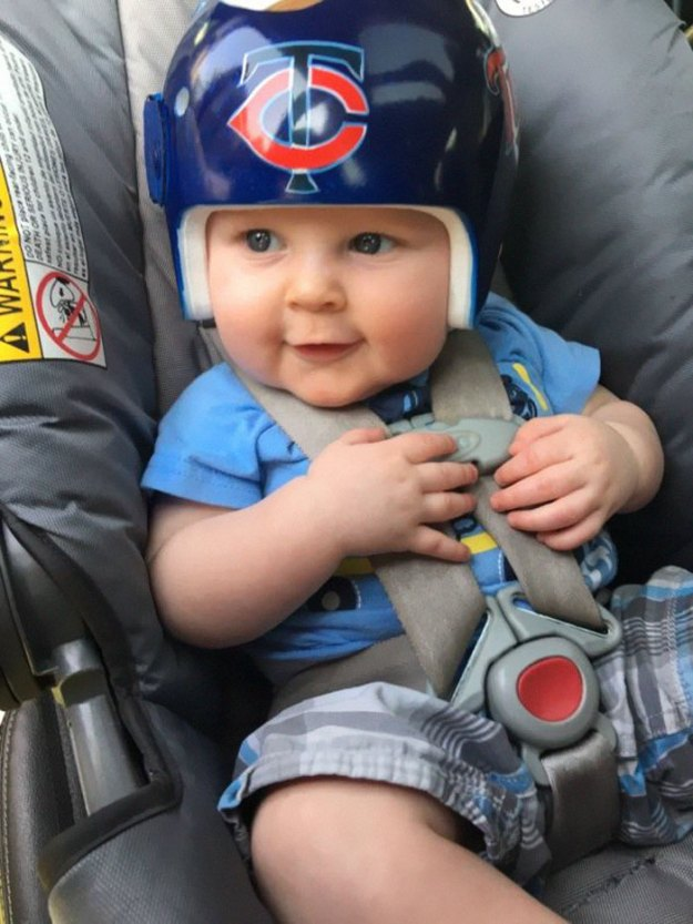 children-son-helmet-support-celebrity-chrissy-teigen-5c07ced98435b__700 Chrissy Teigen Has Shared A Photo Of Her Son With A Head-Shaping Helmet, People From All Around The World Respond Design Random