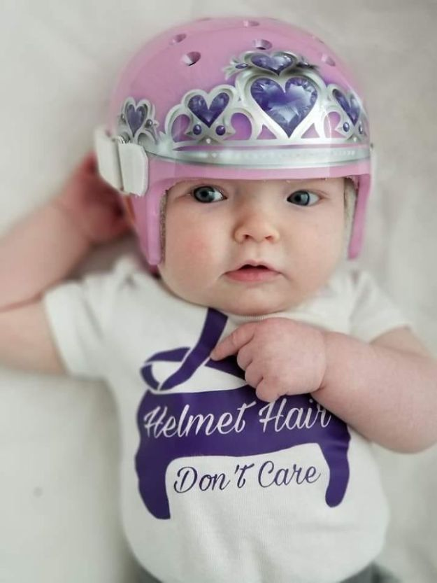 children-son-helmet-support-celebrity-chrissy-teigen-5c07d08c27516__700 Chrissy Teigen Has Shared A Photo Of Her Son With A Head-Shaping Helmet, People From All Around The World Respond Design Random