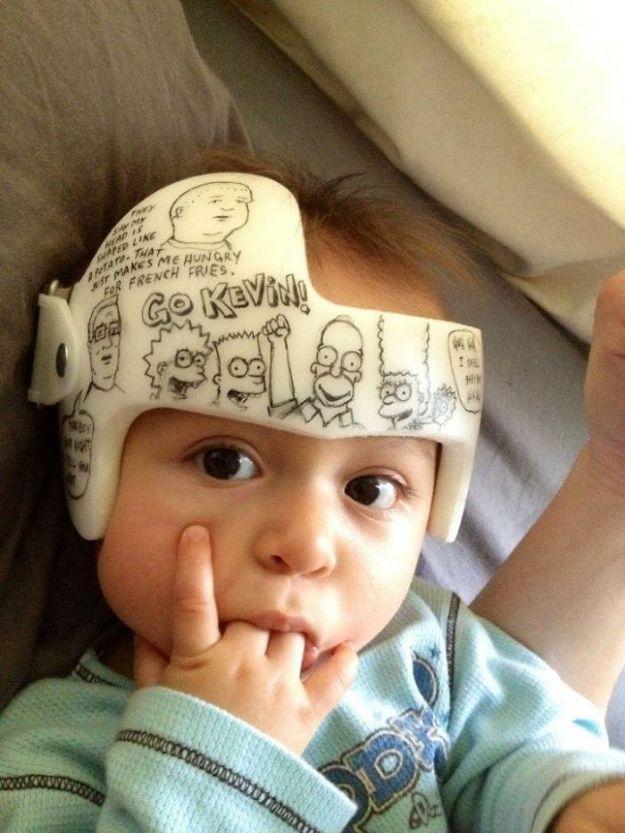 children-son-helmet-support-celebrity-chrissy-teigen-5c07d37ba7d37__700 Chrissy Teigen Has Shared A Photo Of Her Son With A Head-Shaping Helmet, People From All Around The World Respond Design Random