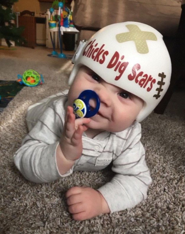children-son-helmet-support-celebrity-chrissy-teigen-5c07d40581369__700 Chrissy Teigen Has Shared A Photo Of Her Son With A Head-Shaping Helmet, People From All Around The World Respond Design Random
