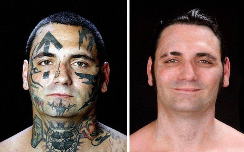 former racist nazi face tattoo removal bryon widner 1 5d4c00088468b  605 - Relembre o ex-Skinhead que se arrependeu de suas tatuagens depois de ser pai