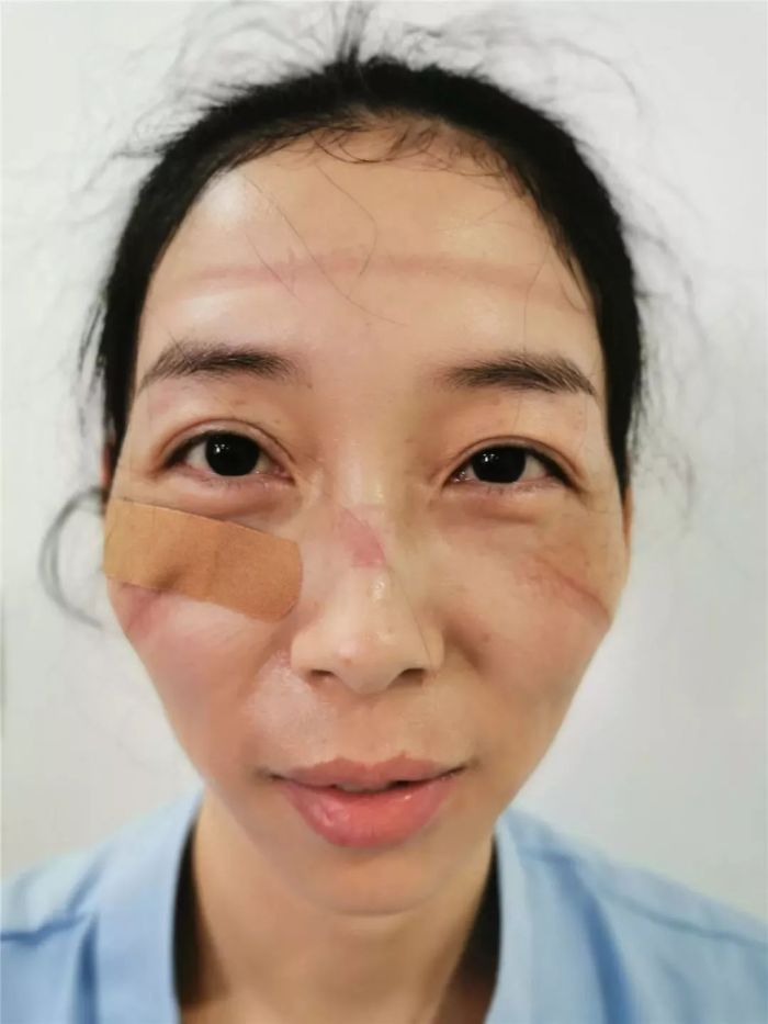 Nurses Take Off Their Face Masks After A Grueling Shift In Fight With Novel Coronavirus