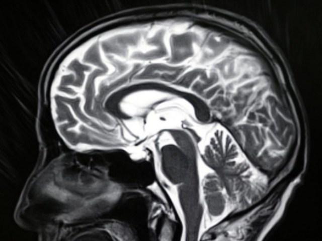 Human-Brain-MRI-Image-777x583.jpg