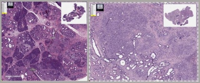 Mouse-Pancreas-With-Cancer-777x324.jpg