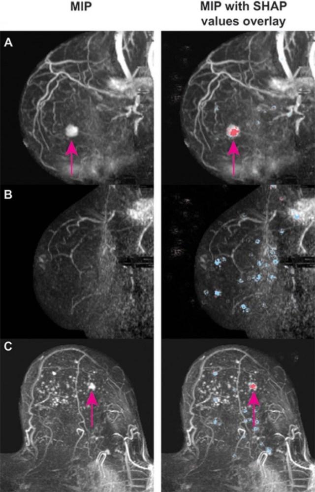 AI-Cancer-in-Dense-Breasts-984x1536.jpg
