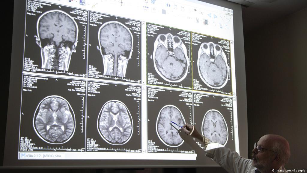 خطر الجلطة الدماغية يهدد الأطفال والشباب علوم وتكنولوجيا آخر الاكتشافات والدراسات من Dw عربية Dw 09 04 2014