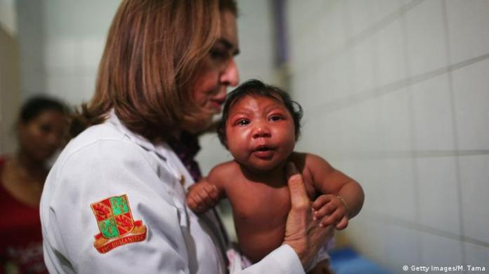Brazil Recife baby with microcephaly
