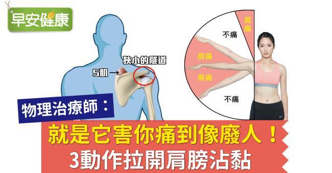 肩夾擠癥候群如何自救?肩痛是肩膀拉傷嗎?物理治療師:3動作拉開肩膀沾黏 |早安健康