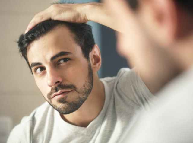 man checking hair line