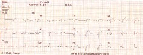 An ECG showing an acute MI