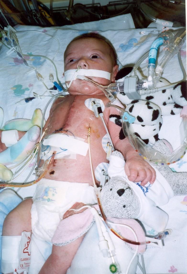 Jacob After Surgery