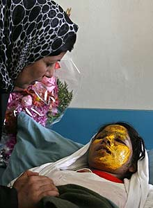 Girl burned with acid