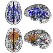 Men and women brains U.Penn study
