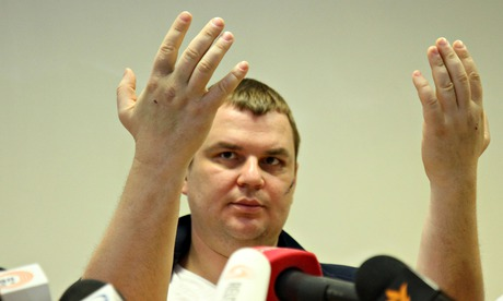 Dmytro Bulatov holds up his hands to show marks where he says nails were driven through his hands