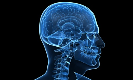 A human brain.