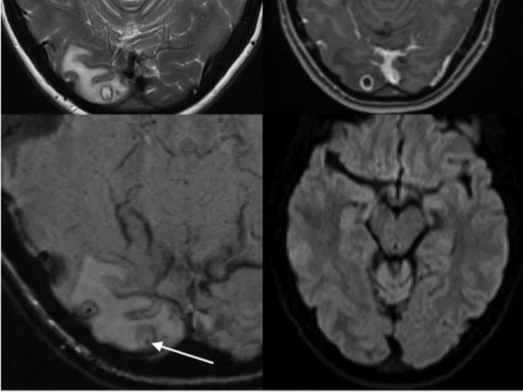 MRI scan showing cyst containing tapeworm larvae