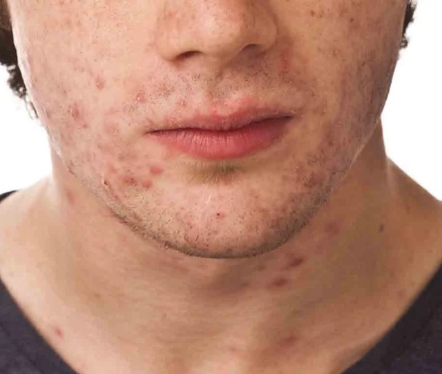 Adult Acne Causes Myths And Treatments