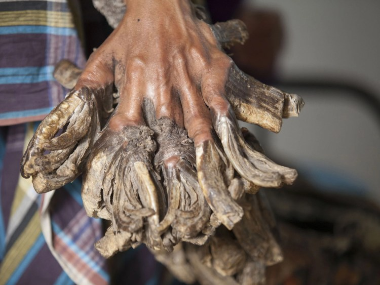 Bangladeshi man with rare condition that makes skin 'look like ...