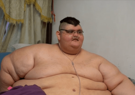 Image result for super obese man picture