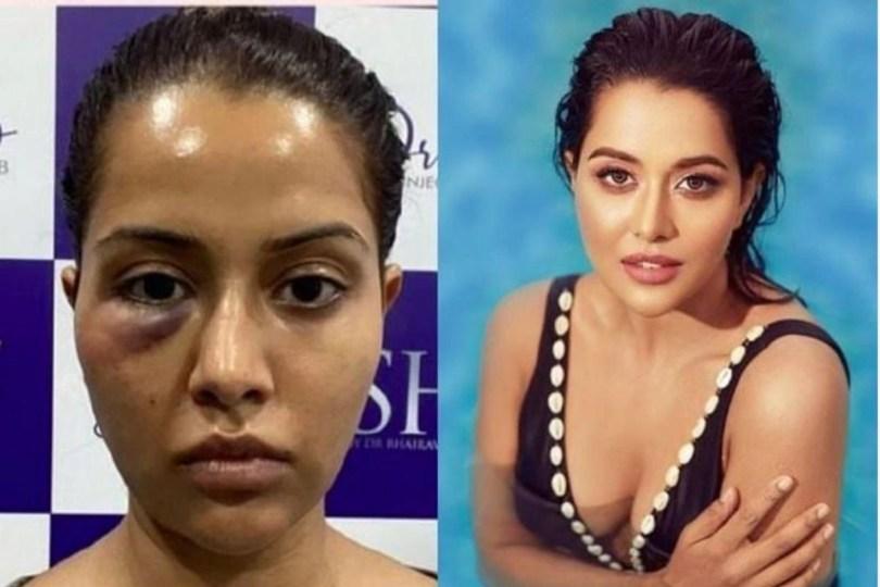 Raiza Wilson's Dermatologist Responds To Her 'Forced Procedure' Allegations, Threatens Legal Action