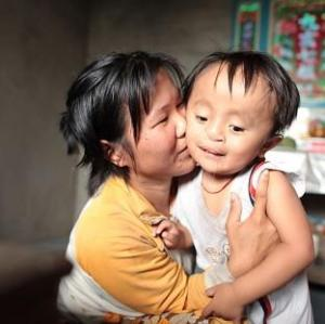 Cleft lip kids pay a big price in Vietnam.