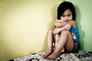 Cleft lip kids at high risk for being abused.