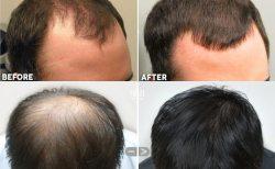 Rụng tóc mất kiểm soát dẫn tới tình trạng hói đầu