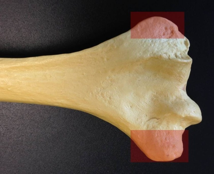 Level 3 - Humerus - Elbow Anatomy and Fracture ...