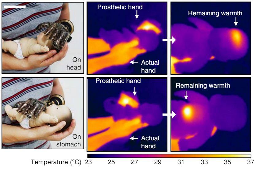 Ilyen nyomot hagy a mesterséges bőr egy szobahőmérsékletű mesterséges csecsemő hőképén