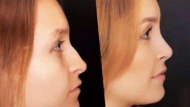 Carla Diaz exibiu o resultado da cirurgia (Foto: Reprodução/Instagram)