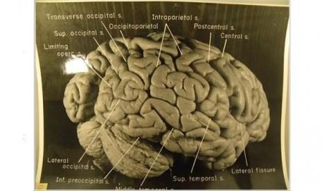Ternyata Begini Bentuk Otak Einstein
